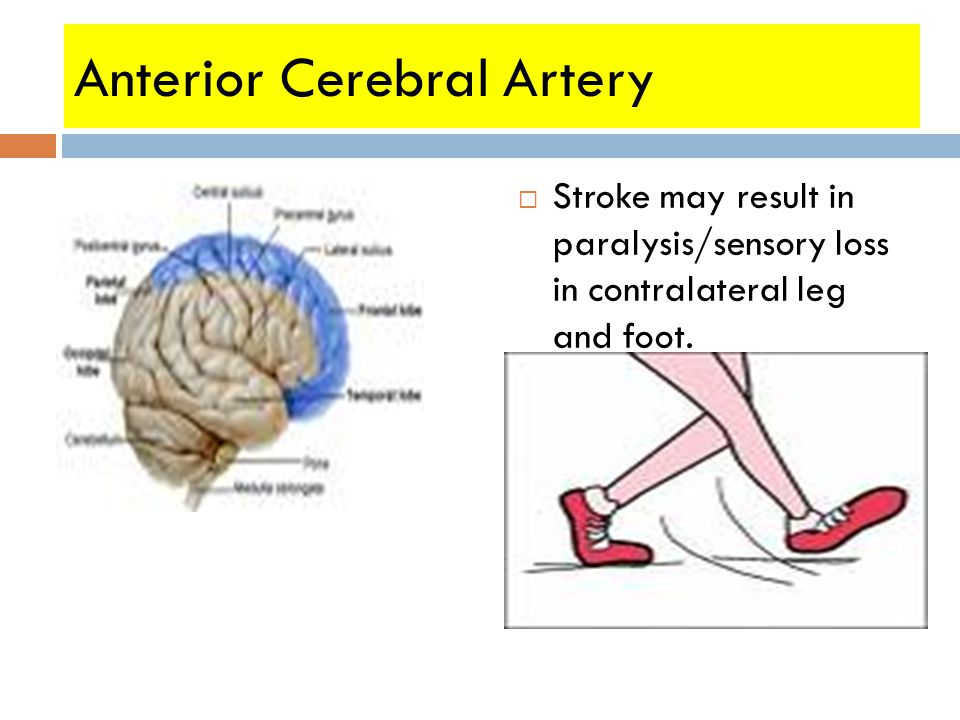 Anterior Cerebral Artery  Profound lower extremity weakness (contralateral)  Stroke may result in paralysis/sensory loss in contralateral leg and foot.