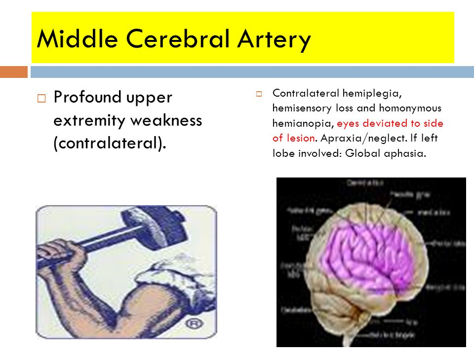Middle Cerebral Artery  Profound upper extremity weakness (contralateral).