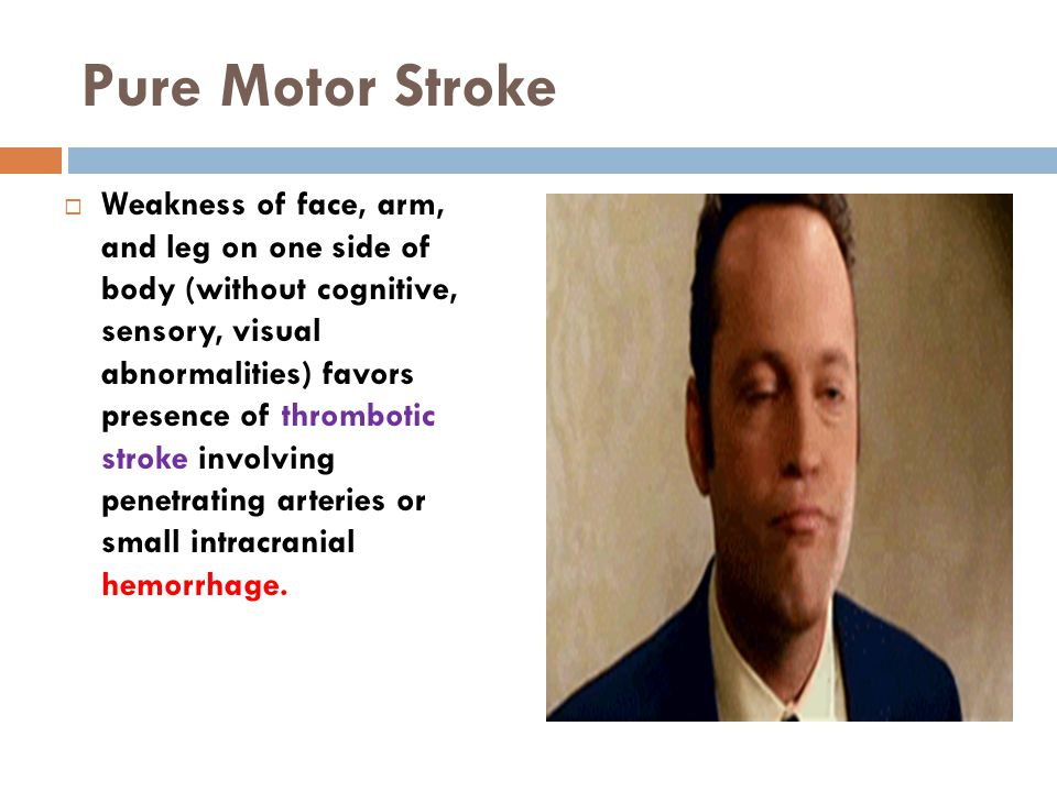Pure Motor Stroke  Weakness of face, arm, and leg on one side of body (without cognitive, sensory, visual abnormalities) favors presence of thrombotic stroke involving penetrating arteries or small intracranial hemorrhage.