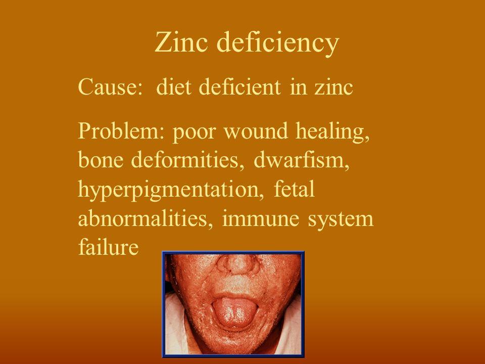 Zinc deficiency Cause: diet deficient in zinc Problem: poor wound healing, bone deformities, dwarfism, hyperpigmentation, fetal abnormalities, immune