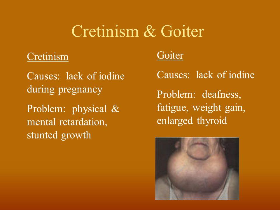 Cretinism & Goiter Cretinism Causes: lack of iodine during pregnancy Problem: physical & mental retardation, stunted growth Goiter Causes: lack of iod