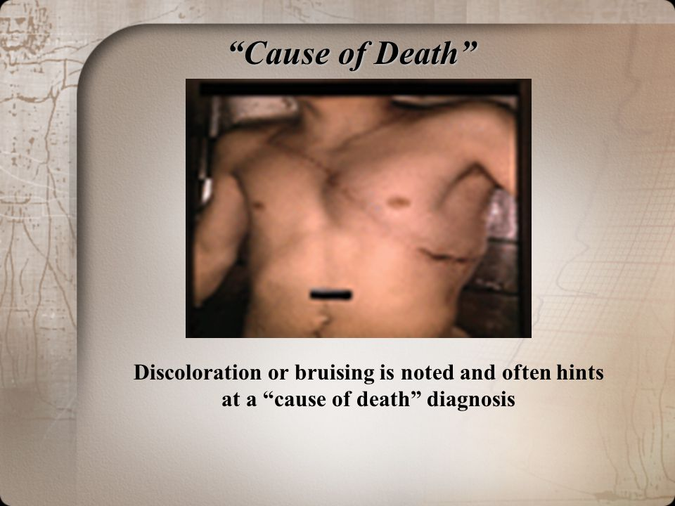 Cause of Death Discoloration or bruising is noted and often hints at a cause of death diagnosis