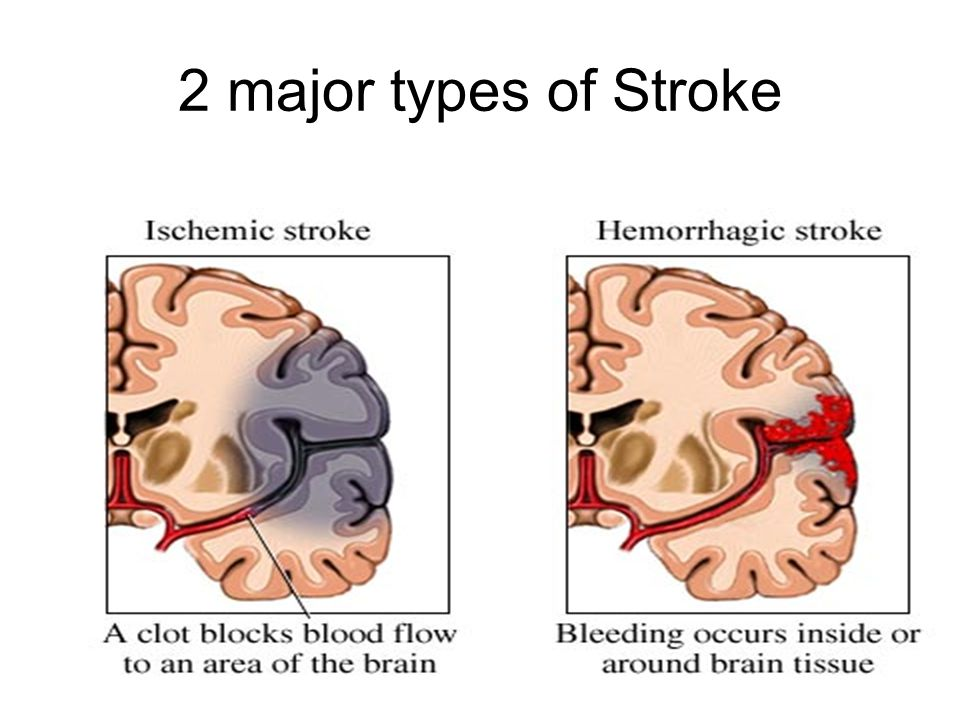 Causes for ischemic stroke Fibrin Clot Blood clot