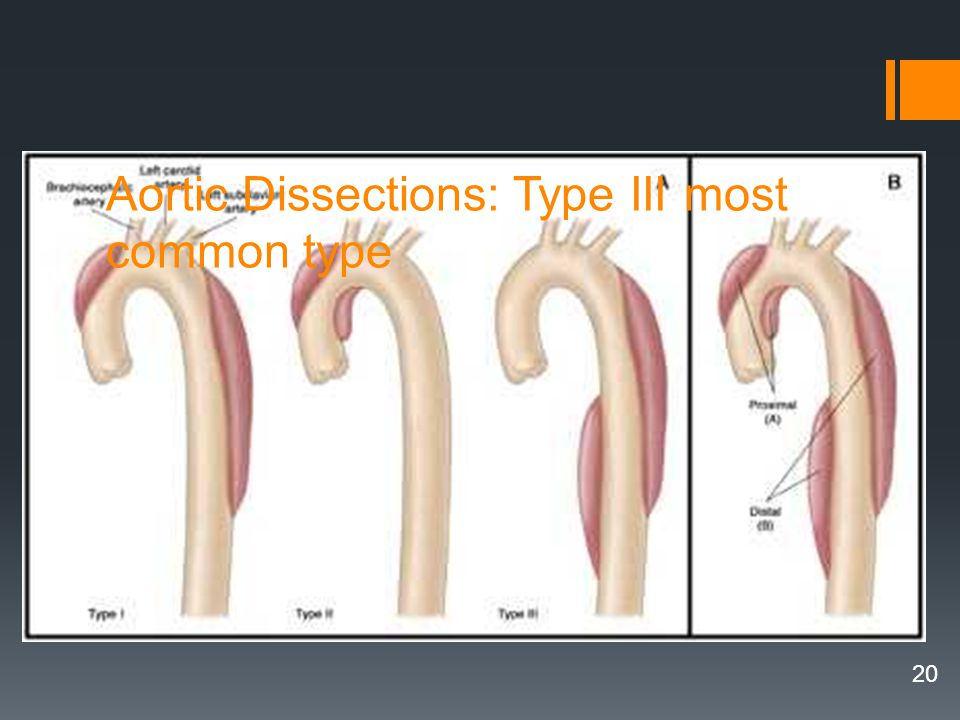 20 Aortic Dissections: Type III most common type