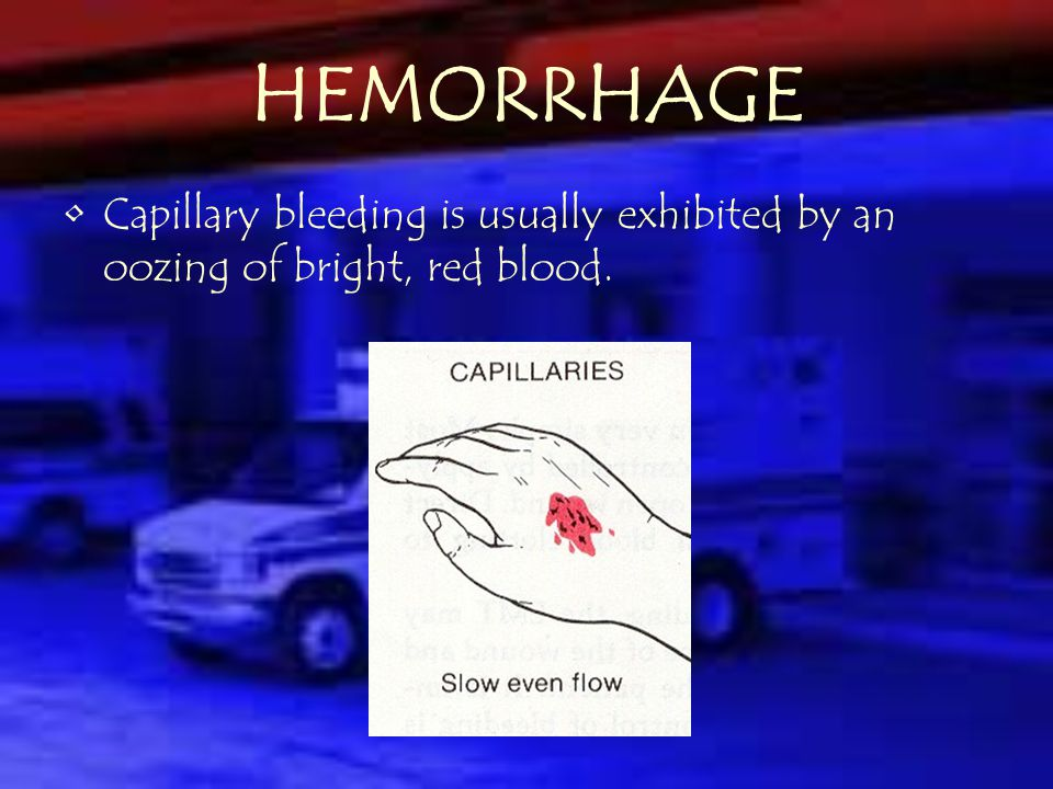 HEMORRHAGE Venous bleeding is usually dark and flows continuously