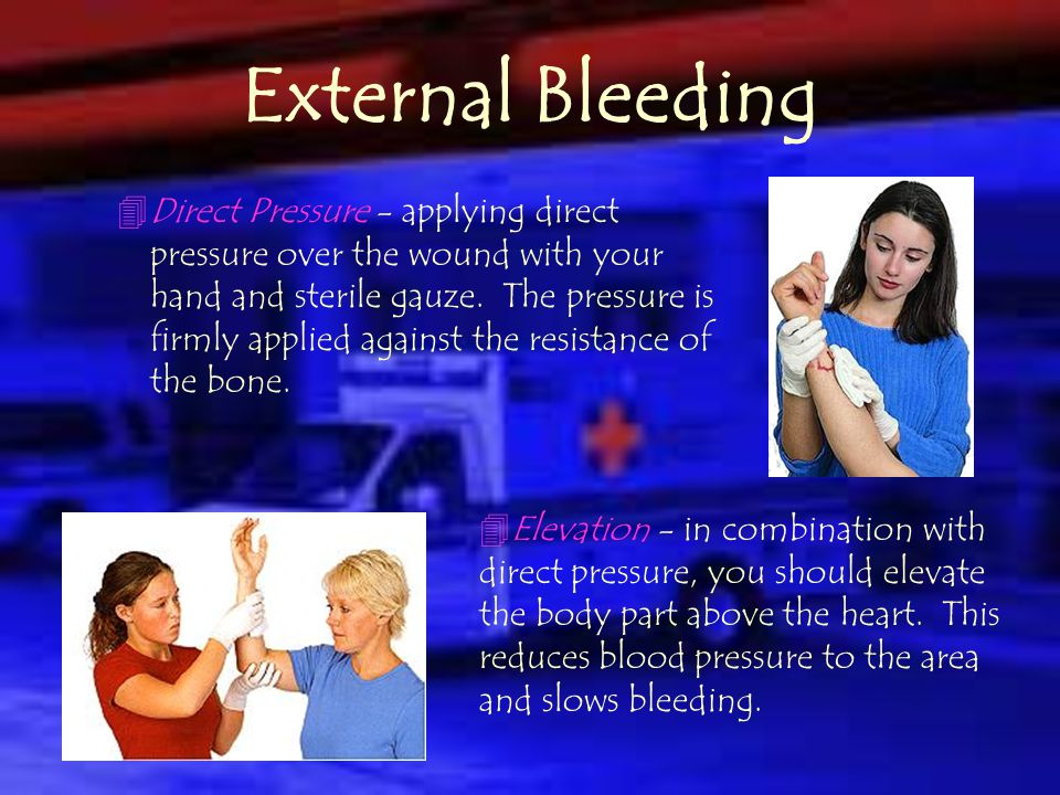 External Bleeding Stems from an open skin wound such as abrasions, lacerations, incisions, punctures, avulsions, etc. There are several methods that c