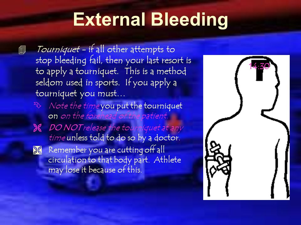 External Bleeding  Pressure Points - can be used when pressure and elevation do not work.