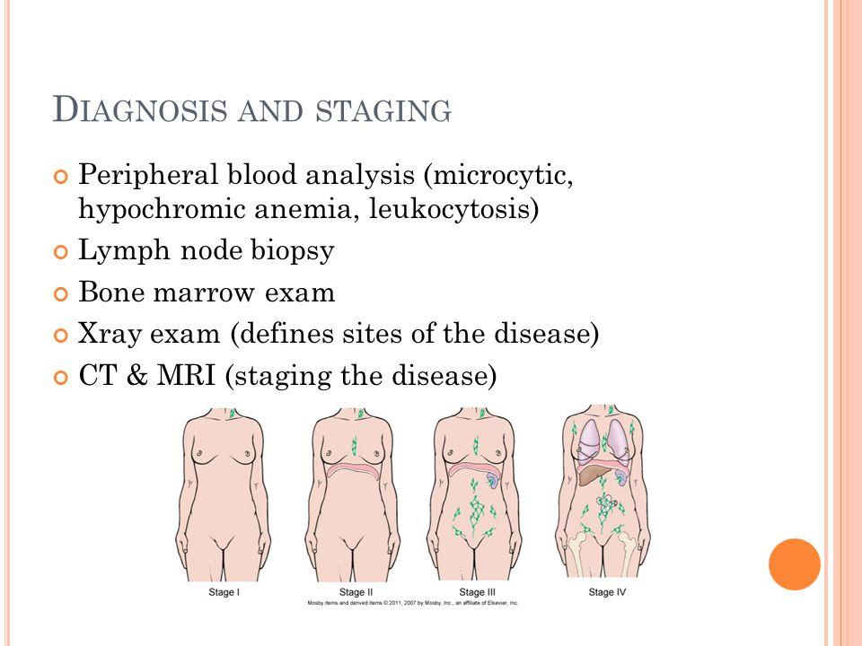 D IAGNOSIS AND STAGING Peripheral blood analysis (microcytic, hypochromic anemia, leukocytosis) Lymph node biopsy Bone marrow exam Xray exam (defines