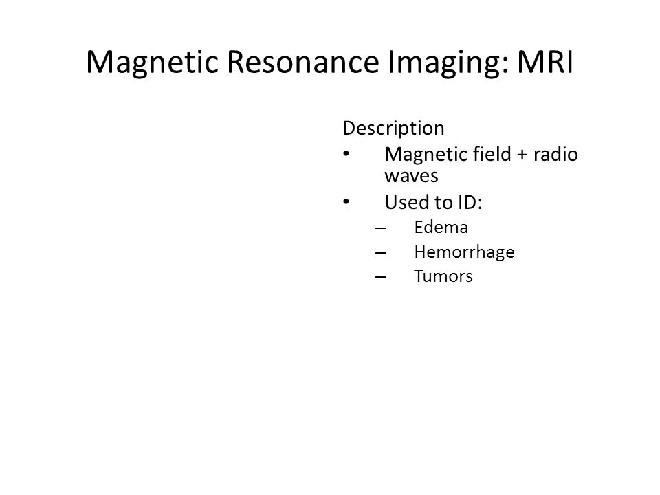 Magnetic Resonance Imaging: MRI Description Magnetic field + radio waves Used to ID: – Edema – Hemorrhage – Tumors