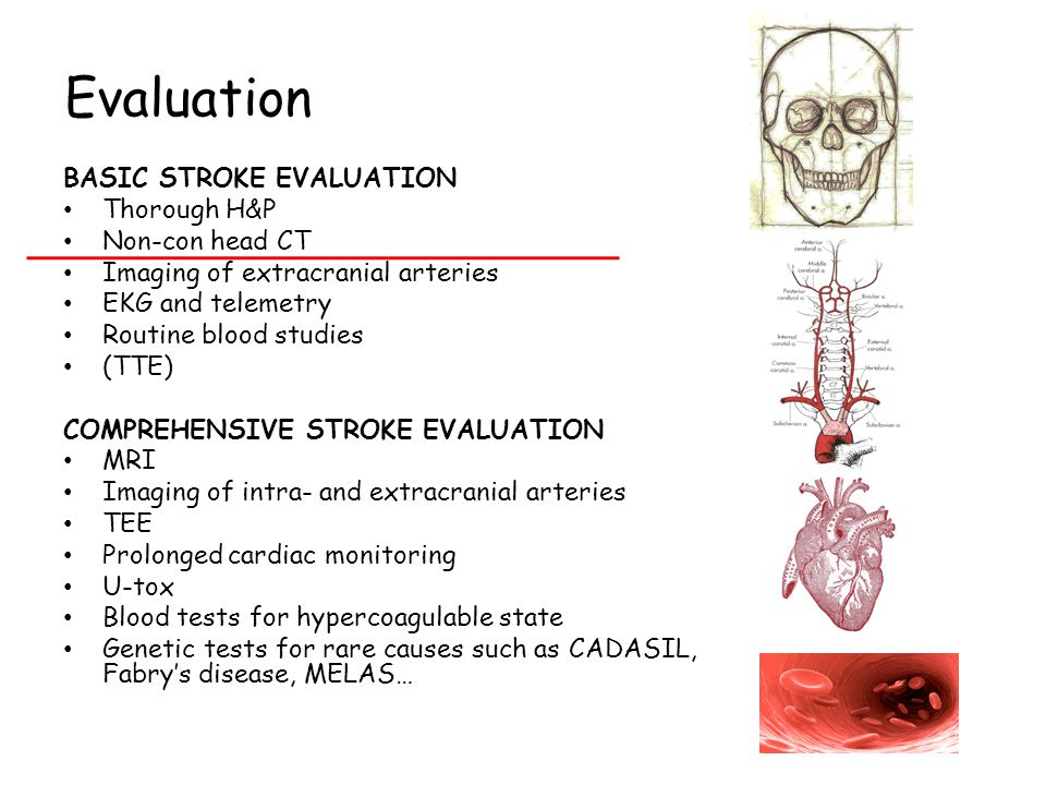 Evaluation BASIC STROKE EVALUATION Thorough H&P Non-con head CT Imaging of extracranial arteries EKG and telemetry Routine blood studies (TTE) COMPREHENSIVE STROKE EVALUATION MRI Imaging of intra- and extracranial arteries TEE Prolonged cardiac monitoring U-tox Blood tests for hypercoagulable state Genetic tests for rare causes such as CADASIL, Fabry's disease, MELAS…
