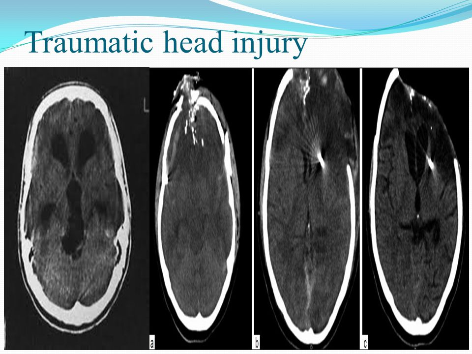 Traumatic head injury
