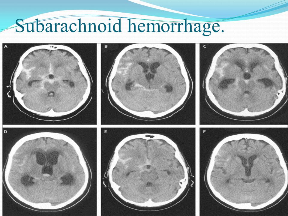 Subarachnoid hemorrhage.