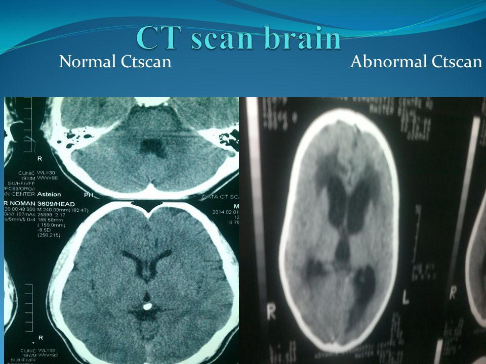 Normal Ctscan Abnormal Ctscan