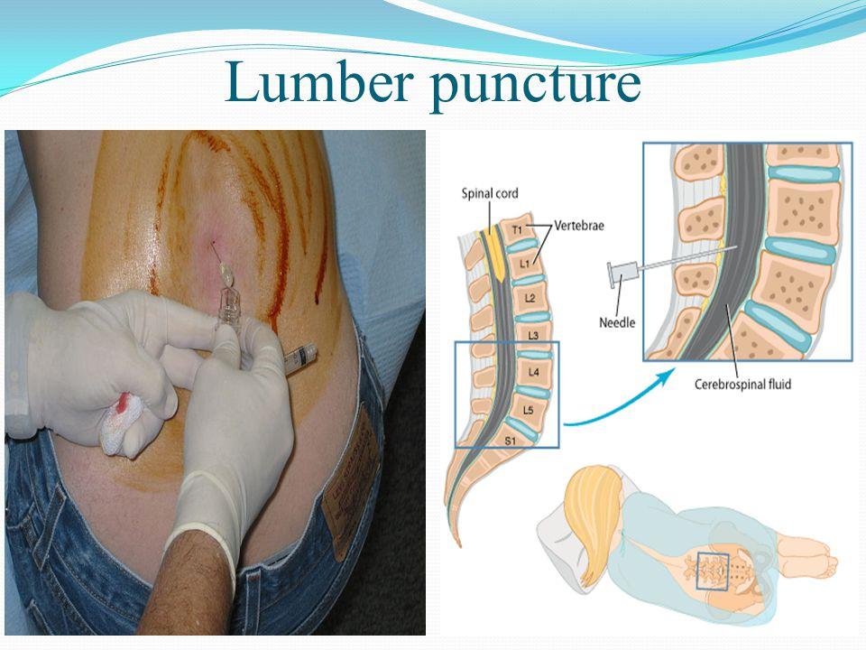 Lumber puncture