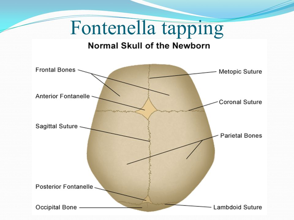 Fontenella tapping