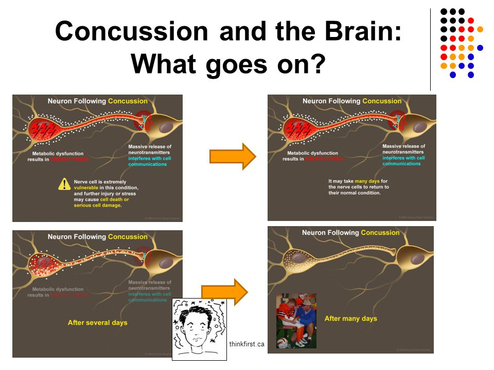 Concussion and the Brain: What goes on? thinkfirst.ca