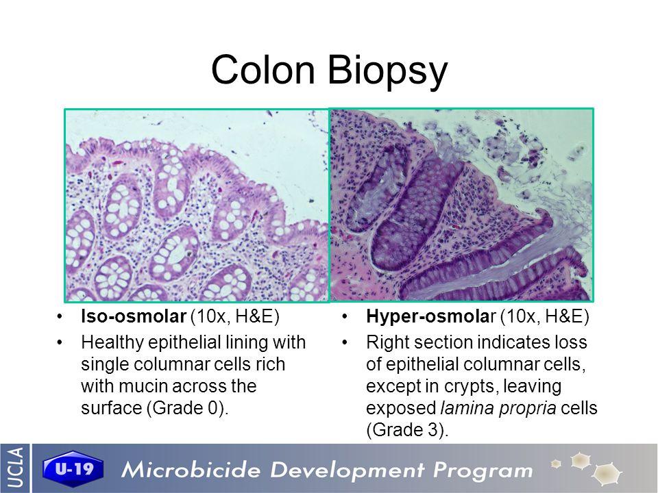 Colon Biopsy Iso-osmolar (10x, H&E) Healthy epithelial lining with single columnar cells rich with mucin across the surface (Grade 0). Hyper-osmolar (