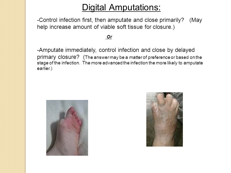 Digital Amputations: -Control infection first, then amputate and close primarily.