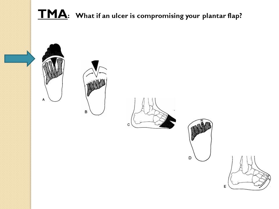 TMA : What if an ulcer is compromising your plantar flap