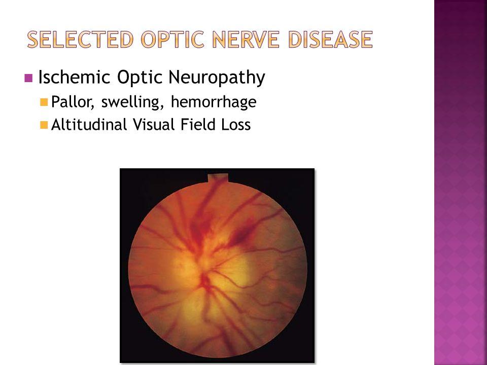 Ischemic Optic Neuropathy Pallor, swelling, hemorrhage Altitudinal Visual Field Loss