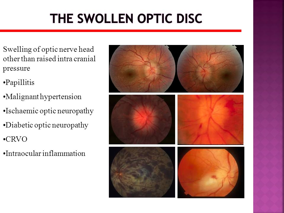 Swelling of optic nerve head other than raised intra cranial pressure Papillitis Malignant hypertension Ischaemic optic neuropathy Diabetic optic neur