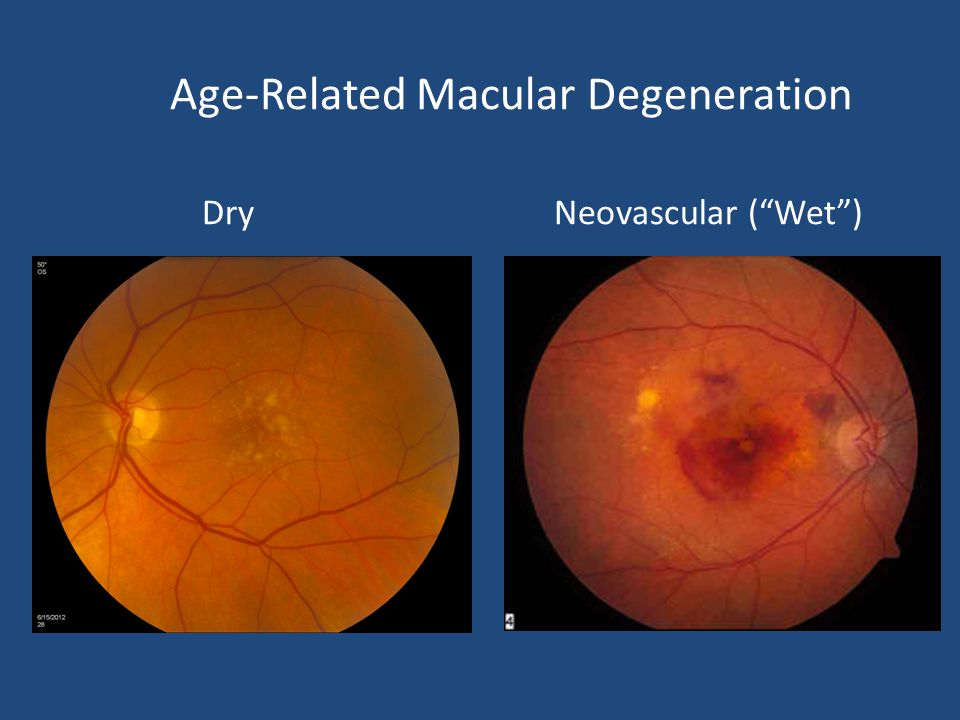 "Age-Related Macular Degeneration Dry Neovascular (""Wet"")"