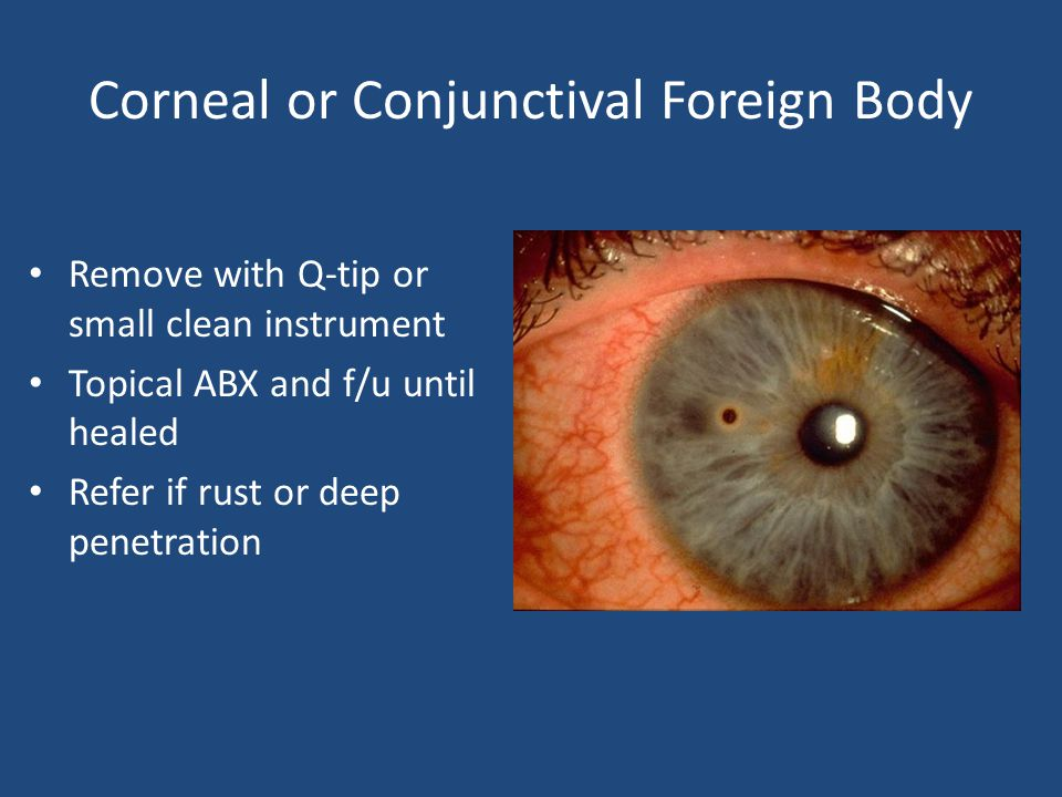 Corneal or Conjunctival Foreign Body Remove with Q-tip or small clean instrument Topical ABX and f/u until healed Refer if rust or deep penetration