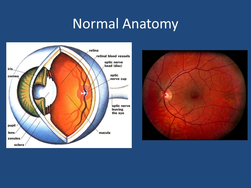 Episcleritis/Scleritis Often sectoral Episcleritis – Minimal pain – Blanches with neo – Treatment: NSAIDS Painful.