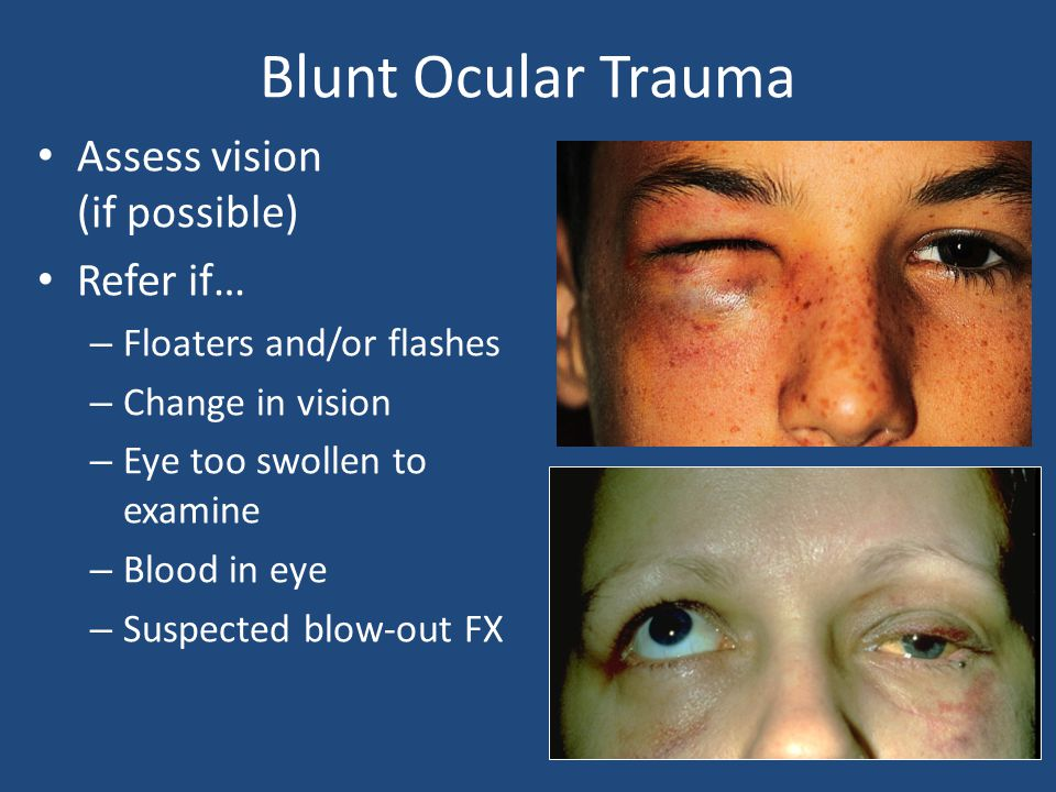 Blunt Ocular Trauma Assess vision (if possible) Refer if… – Floaters and/or flashes – Change in vision – Eye too swollen to examine – Blood in eye – S