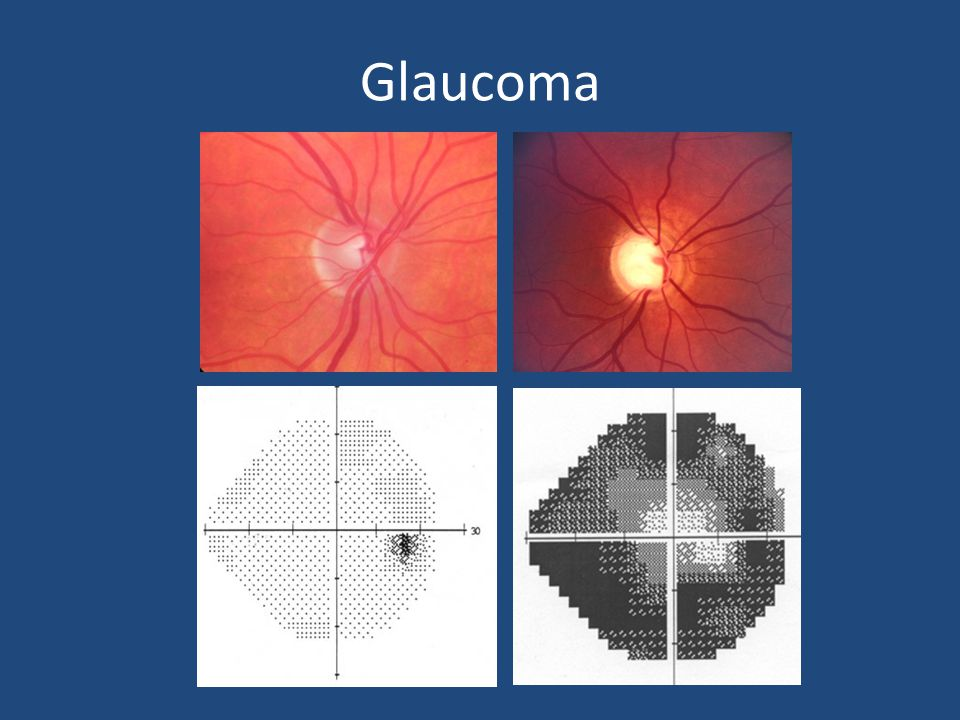 Glaucoma Management: What's new.Not much.