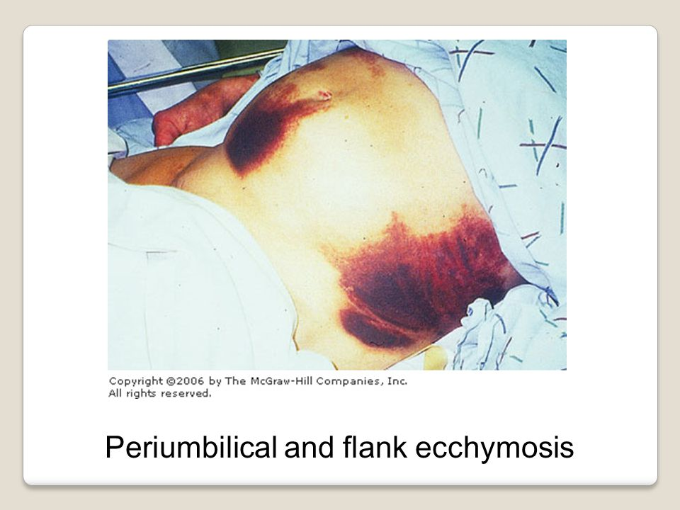 Periumbilical and flank ecchymosis