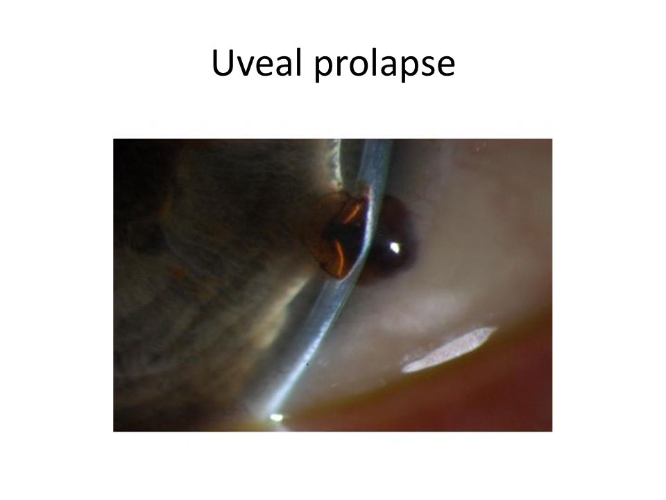 Uveal prolapse
