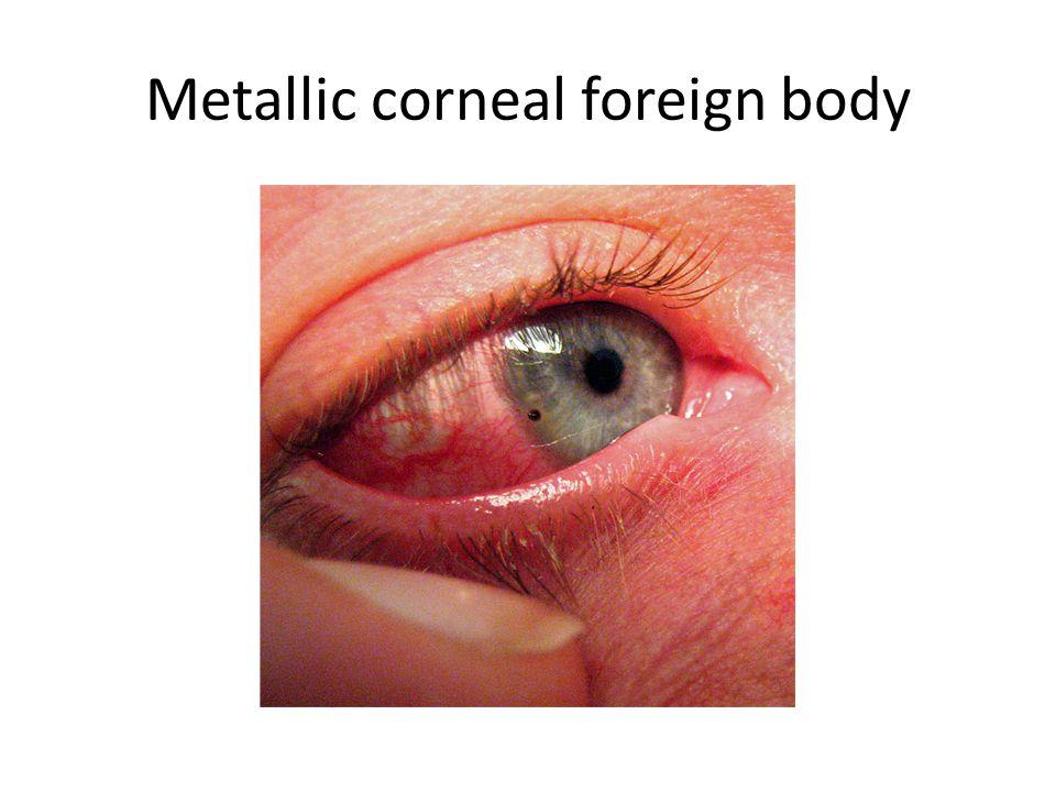Metallic corneal foreign body