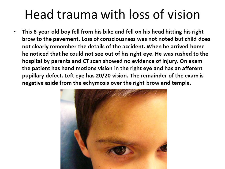 Head trauma with loss of vision This 6-year-old boy fell from his bike and fell on his head hitting his right brow to the pavement.
