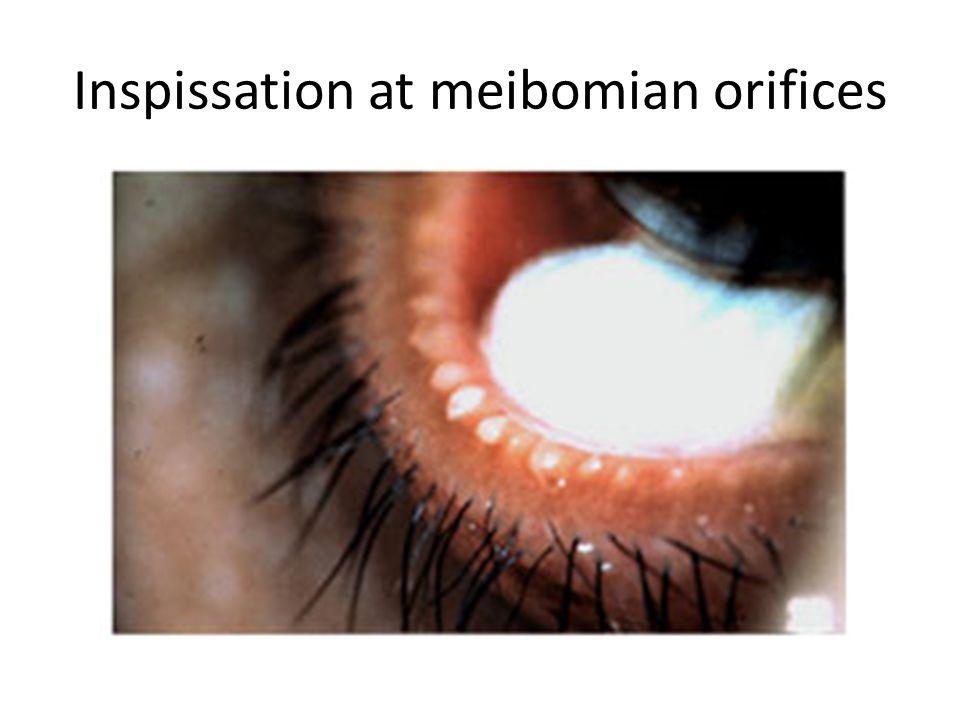 Inspissation at meibomian orifices