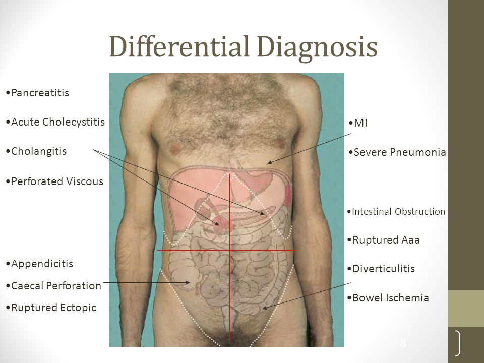 Differential Diagnosis Pancreatitis Acute Cholecystitis Cholangitis Perforated Viscous Intestinal Obstruction Ruptured Aaa Diverticulitis Bowel Ischem