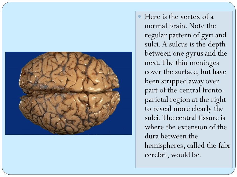 11 The dura has been reflected back (with a small portion visible at the lower right) to reveal a subdural hematoma.