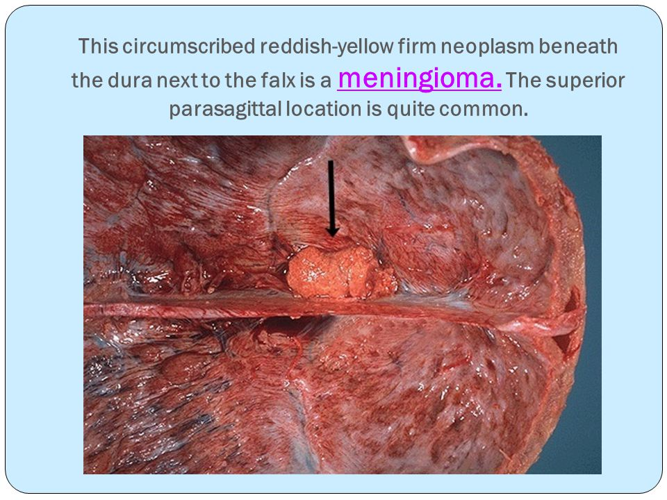 Here is another benign meningioma beneath the dura.