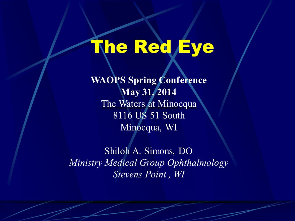 WAOPS Spring Conference May 31, 2014 The Waters at Minocqua 8116 US 51 South Minocqua, WI Shiloh A. Simons, DO Ministry Medical Group Ophthalmology St