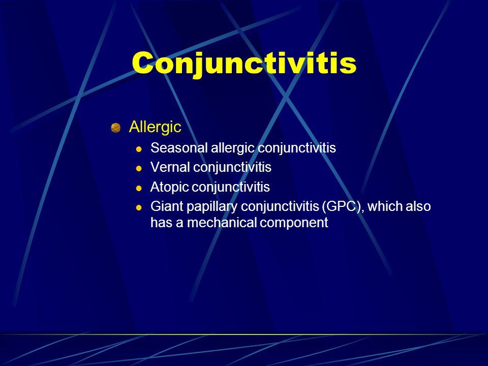 Allergic Seasonal allergic conjunctivitis Vernal conjunctivitis Atopic conjunctivitis Giant papillary conjunctivitis (GPC), which also has a mechanica