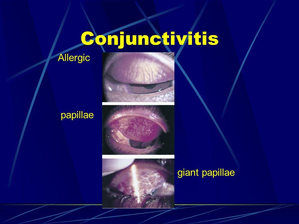 Allergic papillae giant papillae
