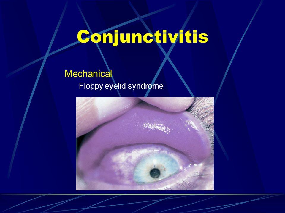Mechanical Floppy eyelid syndrome Conjunctivitis