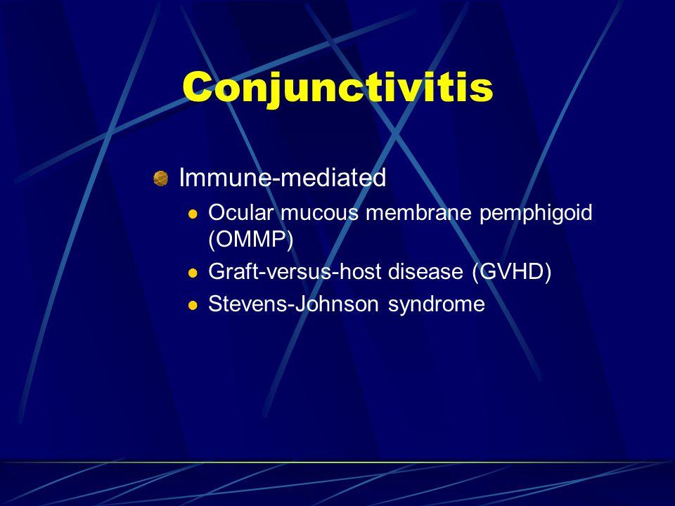 Immune-mediated Ocular mucous membrane pemphigoid (OMMP) Graft-versus-host disease (GVHD) Stevens-Johnson syndrome Conjunctivitis