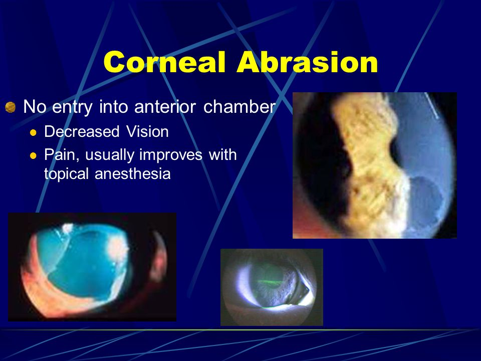 No entry into anterior chamber Decreased Vision Pain, usually improves with topical anesthesia Corneal Abrasion