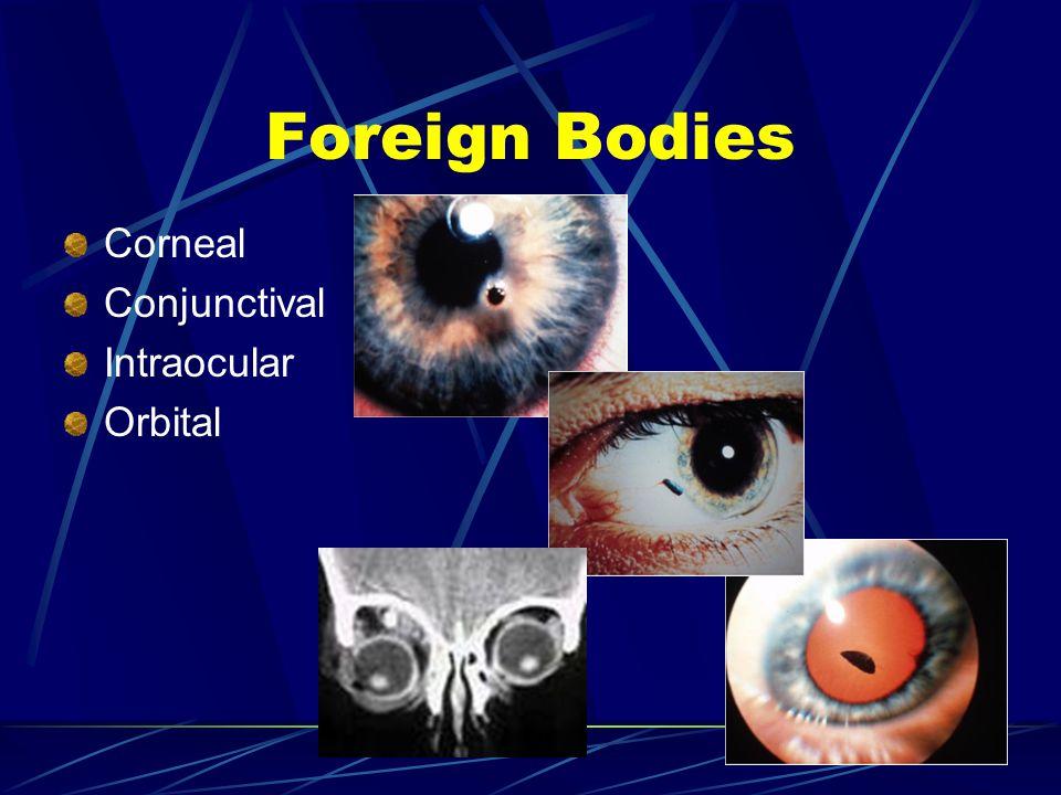 Corneal Conjunctival Intraocular Orbital Foreign Bodies