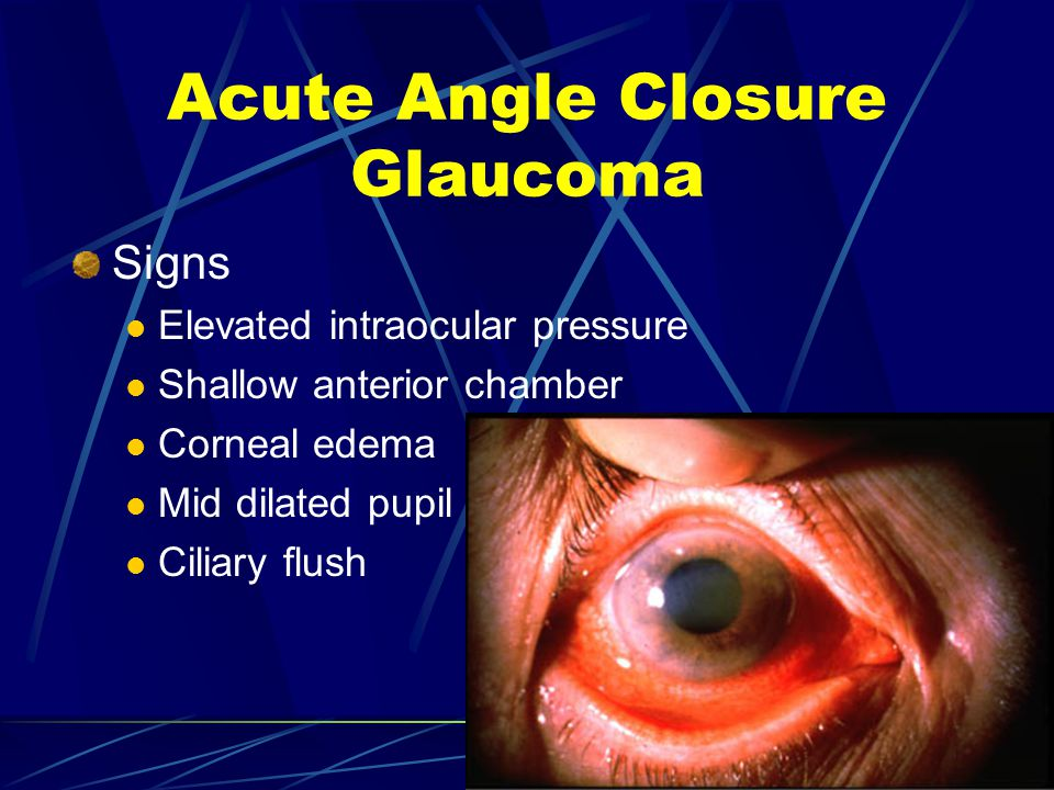 Acute Angle Closure Glaucoma Signs Elevated intraocular pressure Shallow anterior chamber Corneal edema Mid dilated pupil Ciliary flush