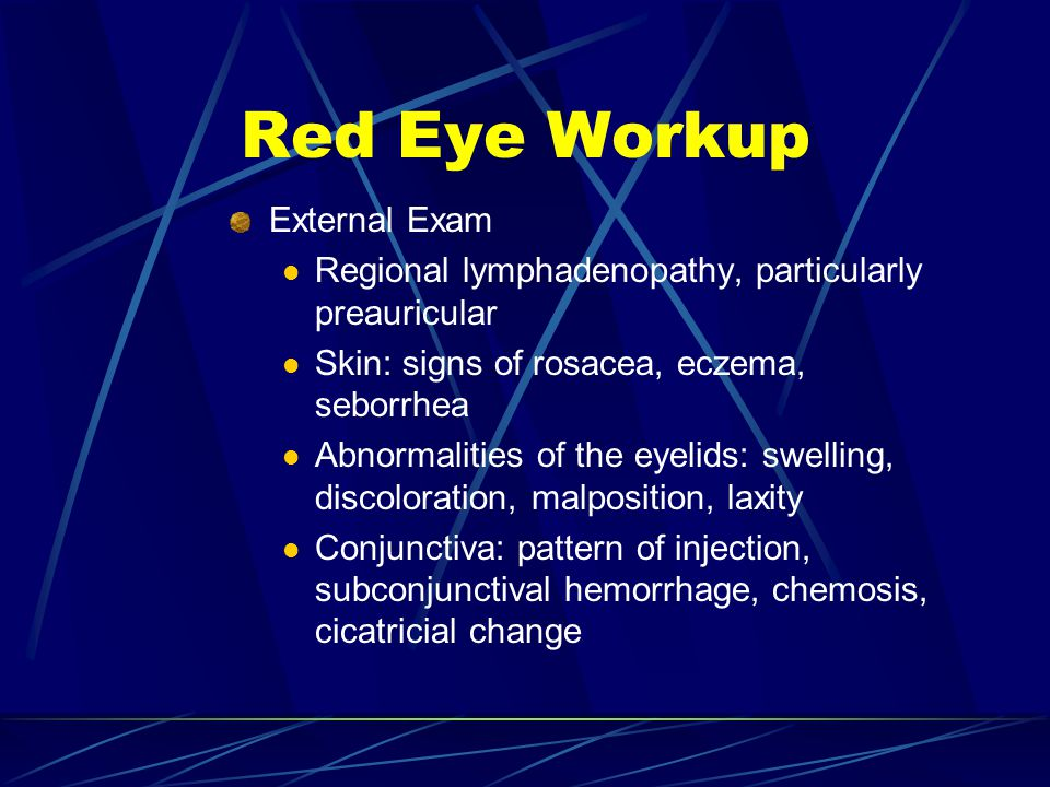 External Exam Regional lymphadenopathy, particularly preauricular Skin: signs of rosacea, eczema, seborrhea Abnormalities of the eyelids: swelling, di