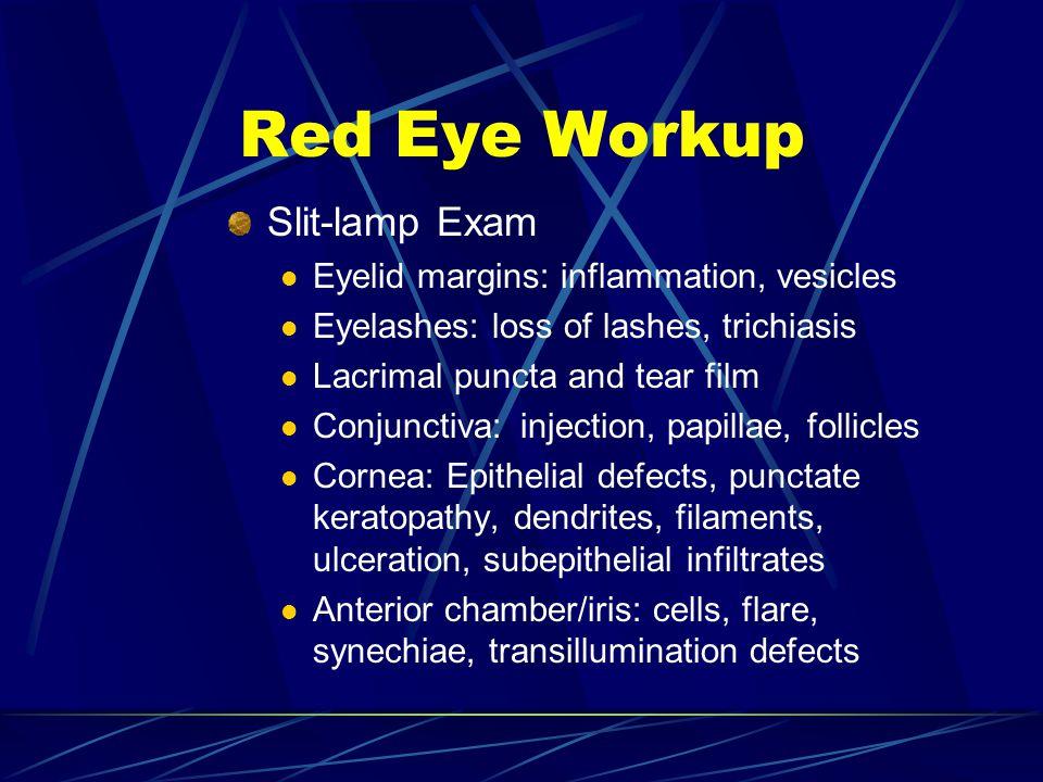 Slit-lamp Exam Eyelid margins: inflammation, vesicles Eyelashes: loss of lashes, trichiasis Lacrimal puncta and tear film Conjunctiva: injection, papi