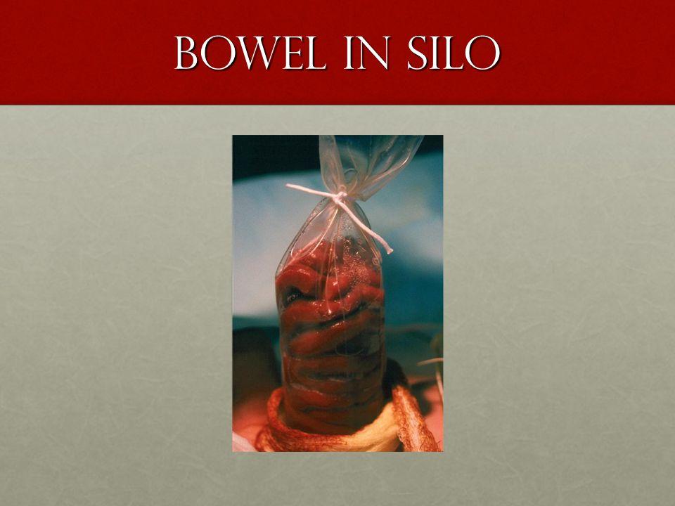 Bowel in silo