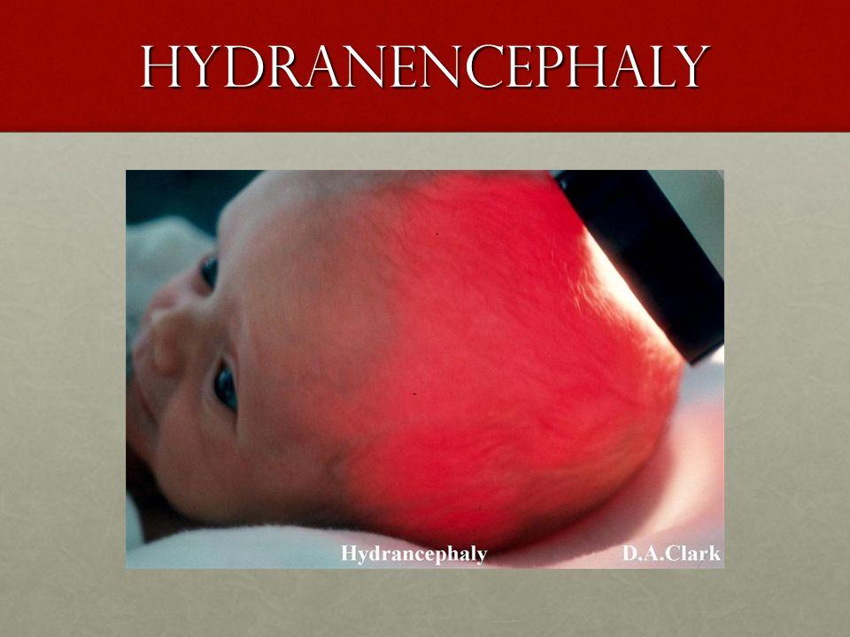 Hydranencephaly